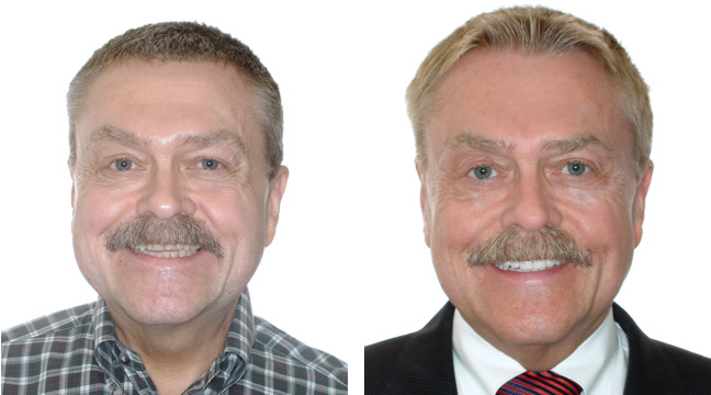 dental implant partners smile makeover example 4