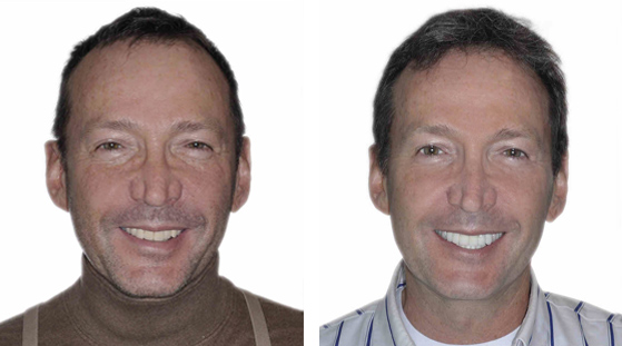 dental implant partners smile makeover example 1