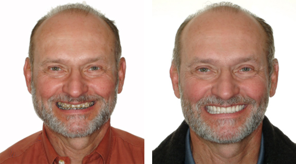 dental implant partners smile makeover example 3